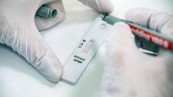 Экспресс-диагностика на антитела к коронавирусу в клинике Hadassah Medical Moscow в Сколково