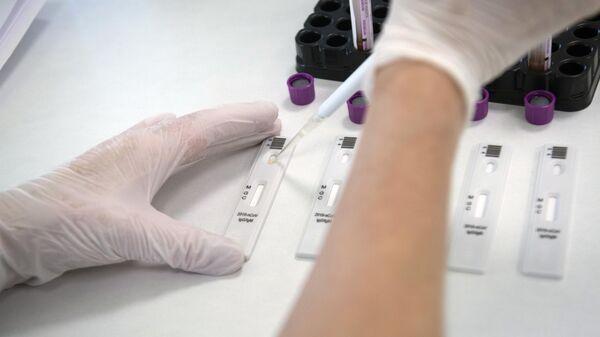 Экспресс-диагностика на антитела к коронавирусу