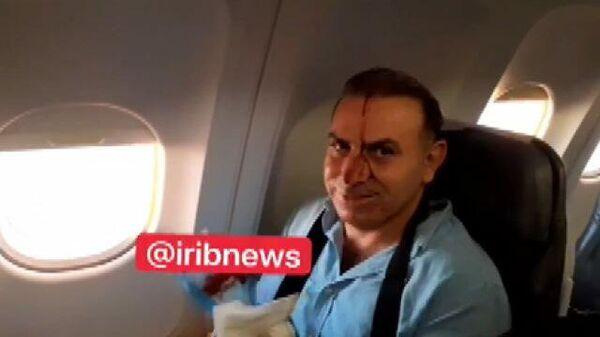 Иранский самолет после столкновения с предполагаемым американским истребителем