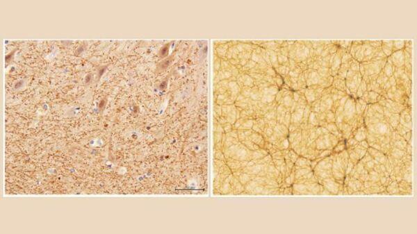 Срез мозжечка с 40-кратным увеличением, полученный с помощью электронной микроскопии (слева) и часть космологической модели Вселенной (справа)