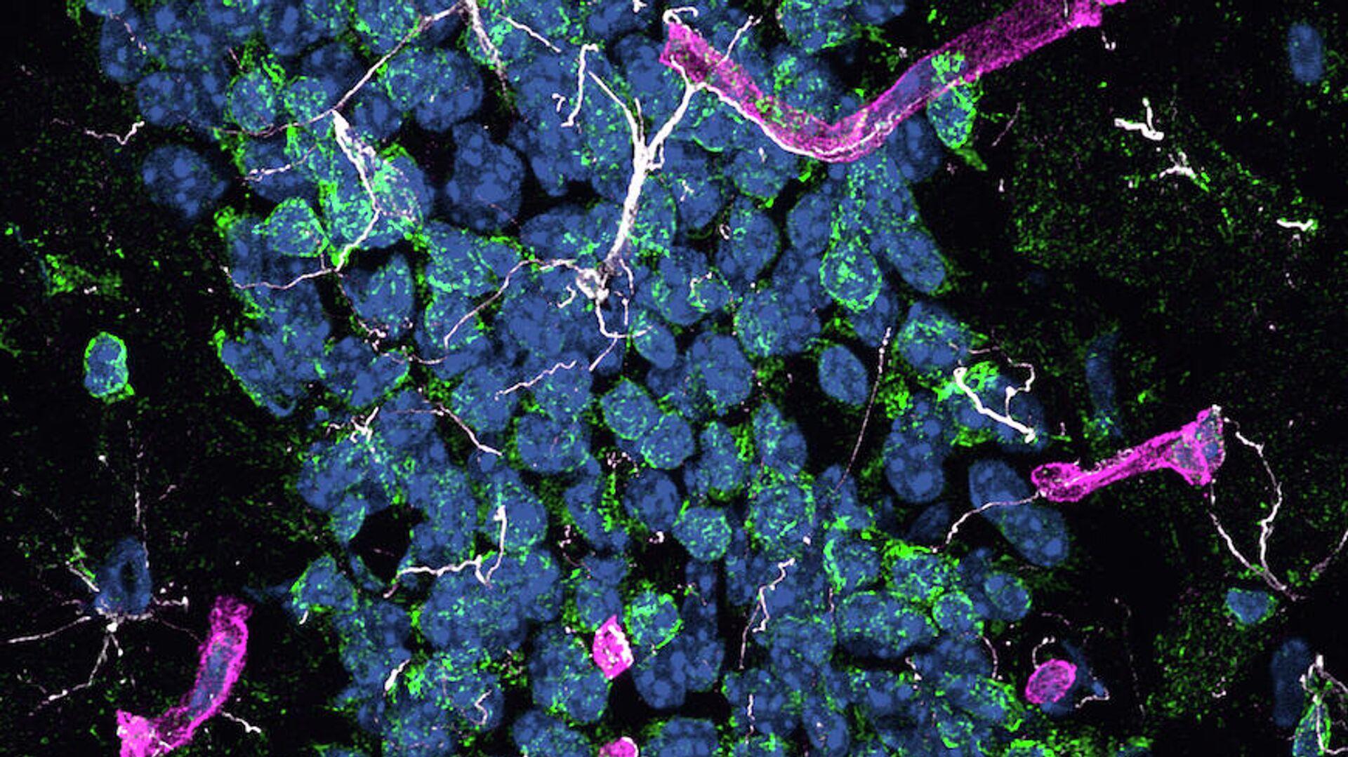Фрагмент гиппокампа мышей с болезнью Альцгеймера. Проявления нейродегенерации: белым - активация астроцитов; зеленым - окислительный стресс; пурпурным - активация окружающих церебральных капилляров. Синим - ядра клеток - РИА Новости, 1920, 14.09.2021