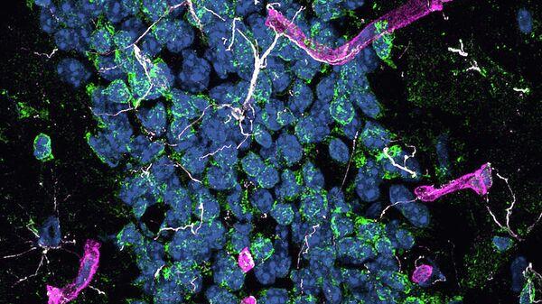 Фрагмент гиппокампа мышей с болезнью Альцгеймера. Проявления нейродегенерации: белым - активация астроцитов; зеленым - окислительный стресс; пурпурным - активация окружающих церебральных капилляров. Синим - ядра клеток