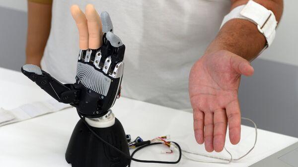 Бионический протез верхних конечностей