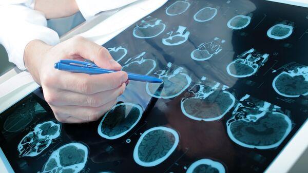 Врач смотрит результаты КТ головного мозга пациента. Архивное фото