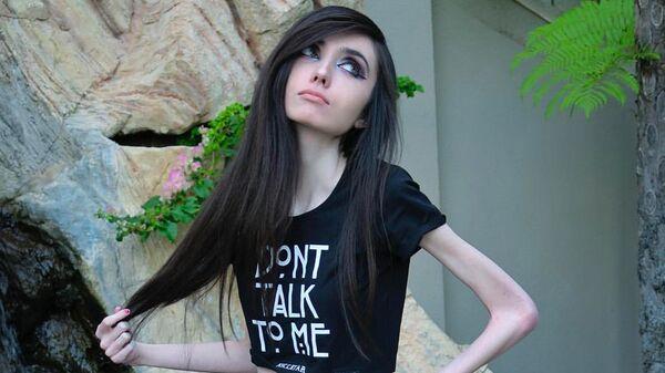Умирает в прямом эфире: блогера обвиняют в пропаганде анорексии