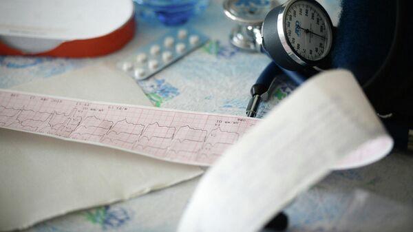Данные кардиограммы одного из пациентов