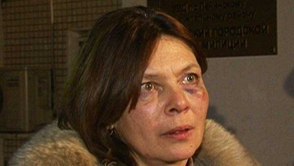 Женщина обвиняет главу УгРо ОВД города Московский в избиении